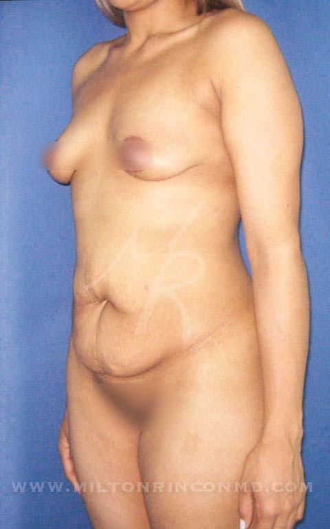 2antes-lipo-abdominoplastia