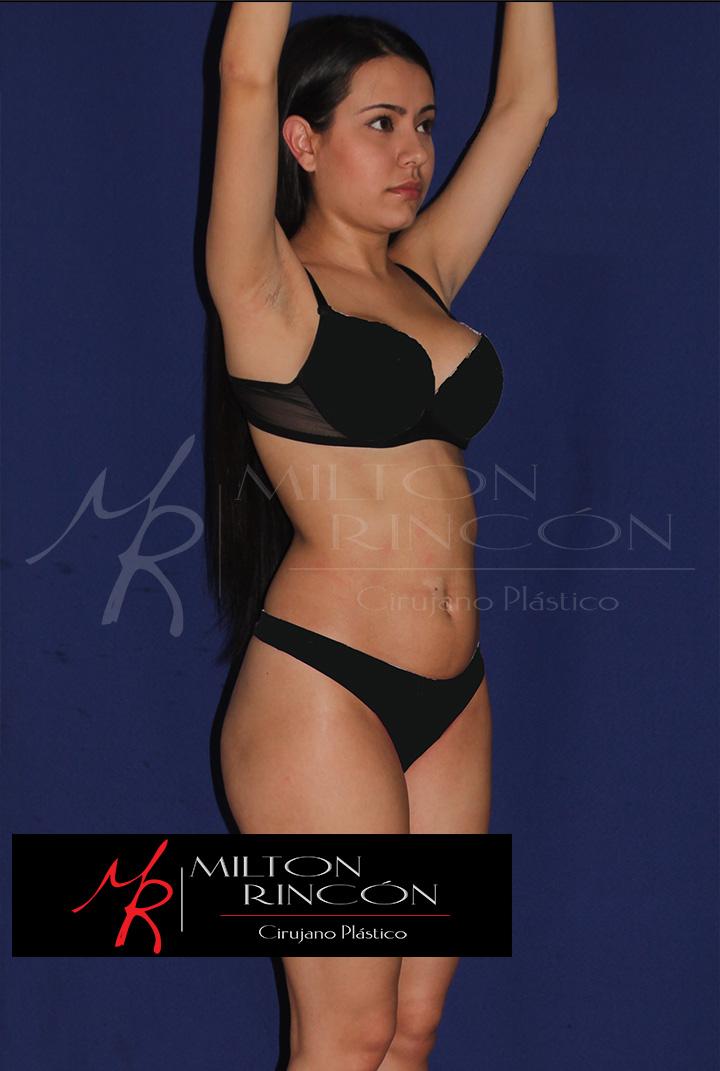 Previo a la cirugía grandes depósitos de grasa en abdomen y cintura
